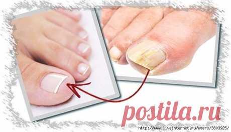 Как вылечить грибок ногтей народными средствами. Личный опыт.