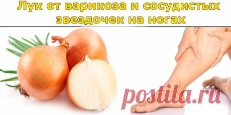 Onions from varicosity and vascular asterisks standing — 3 checked recipes | Useful tips