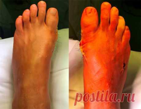 «Вальгусная деформация большого пальца стопы - лечение косточки  Вальгусная деформация большого пальца стопы, причина которого поперечное плоскостопие. Консервативное лечение вальгусной деформации большого пальца стопы. Вальгусная деформация большого пальца стопы – наиболее часто встречающаяся ортопедическая проблема у женщин после 30 лет. Под действием длинного ряда причин изменяется естественный и образуется патологический угол между фалангой перв...