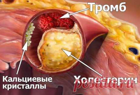 После такой чистки сосудов проходит гипертония и ещё 9 якобы «неизлечимых» заболеваний