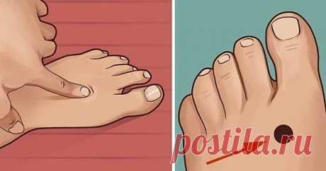 ЭТУ ТОЧКУ ИСПОЛЬЗУЮТ В ВОЕННОЙ МЕДИЦИНЕ! Если Вам не просто плохо, а очень плохо, надавите на точку! точка работает 100%   Особая точка на пальце руки и шикарная точка на ногах… Если Вам не просто плохо, а хреново, надавите на точку и держите долго.   Особая точка на пальце.   Снижает резко давление,нормализует многие вещи.  Сознание проясняется, в глазах станет ясно.  В ушах — на грани звона.   Этим пользуются в военной медицине. А там лечение от обычной сильно отличается...