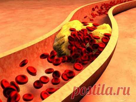 Факты о холестерине, о которых мало кто знает Существует устойчивое общественное мнение о вреде холестерина для нашего организма, особенно в пожилом возрасте. А врачи давно говорят, что он присутствует у большинства живых существ, даже в цитоплазме бактерий. Так что же такое холестерин и как он влияет на наше здоровье?