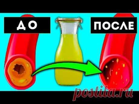 ТАКОЙ ОБРАЗ Вычистит сосуды от Холестерина за 40 дней без лекарств дома. Инсульт, инфаркт и...