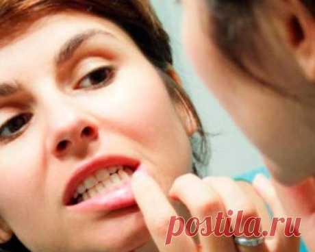 Folk remedies for strengthening of gums
