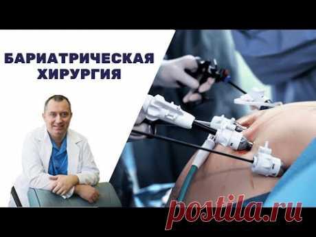 Бариатрическая операция на желудке! Поможет похудеть?  Хирургический метод лечения ожирения.