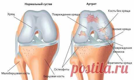 Артроз суставов - причины, симптомы, диагностика, лечение