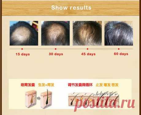 Оригинал солнечные лучи андреа быстрый рост волос Pilatory сущность человеческих волос масло мужские женщины облысение облысение продукты потери купить на AliExpress