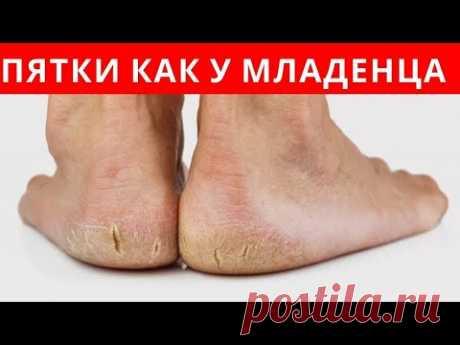 ПОТРЯСАЮЩИЙ РЕЦЕПТ - ПЯТКИ как у МЛАДЕНЦА