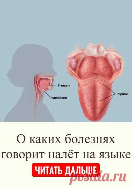 О каких болезнях говорит налёт на языке