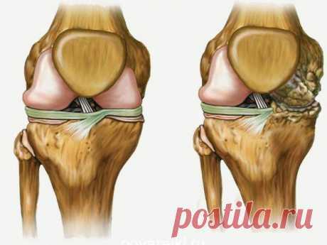 Лечит ваши колени, восстанавливает кости и суставы в кратчайшие сроки! Болят колени и суставы? Не можете нормально ходить и каждый шаг доставляет только дискомфорт? Есть простое домашнее средство, которое пользуется огромной популярностью в решении этой проблемы. Вы будете удивлены эффекту от его использования! Болят колени и суставы? Не можете нормально ходить и кажды