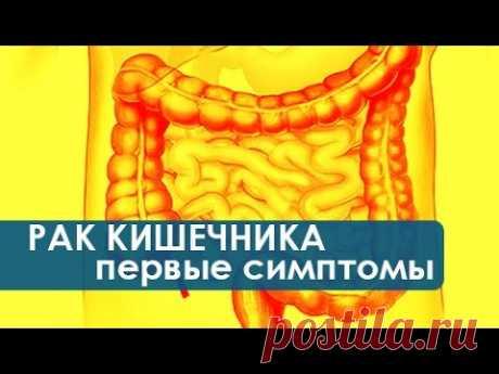 Симптомы рака кишечника. Как проявляются первые симптомы рака кишечника. Колопроктология