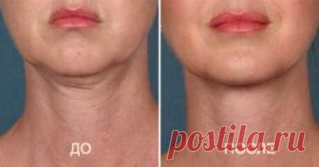 7 способов убрать дряблый двойной подбородок! Минус 10 лет гарантировано Второй подбородок является проблемой как полных, так и худощавых женщин. Ведь набор лишнего веса лишь одна из его причин. Среди наиболее распространенных виновников этой неприятности можно выделить генетику, возрастные изменения, дряблость кожи, резкую потерю веса, а также часто опущенную голову. Зачастую, чтобы убрать этот дефект женщины обращаются к пластическим хирургам или косметологам. Но оглянись вокруг: […]