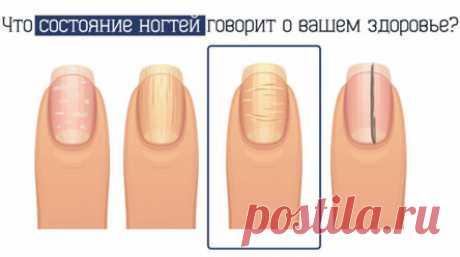 Выпуклости на ногтях: на какие болезни указывают данные симптомы? Мы редко обращаем внимание на здоровье своих ногтей. Вернее, зачастую считаем, что это лишь косметическая проблема. Но на самом деле состояние ваших ногтей может многое поведать о том, что же происходит с вашим здоровьем. К примеру, горизонтальные выпуклости – это признак псориаза. Журнал Ещё! хочет рассказать вам о других важных симптомах, которые указывают на те или иные заболевания. Что состояние ногтей р...