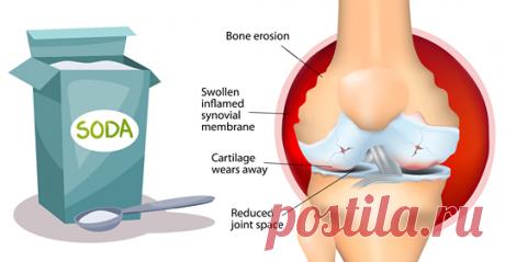 Как использовать соду, чтобы облегчить боль при артрите Легко и просто! (Примечание: информация, представленная в этой статье, предназначена для образовательных целей. Пожалуйста, посоветуйтесь с вашим доктором