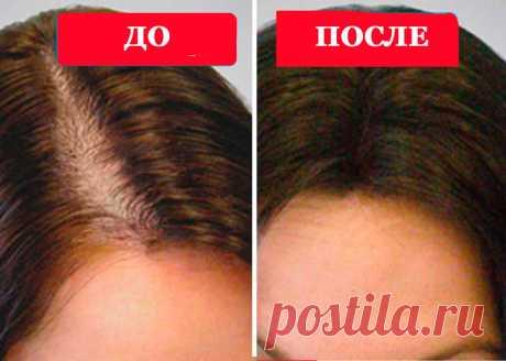 Живица – уникальное чудо-средство от выпадения волос | Всегда в форме!