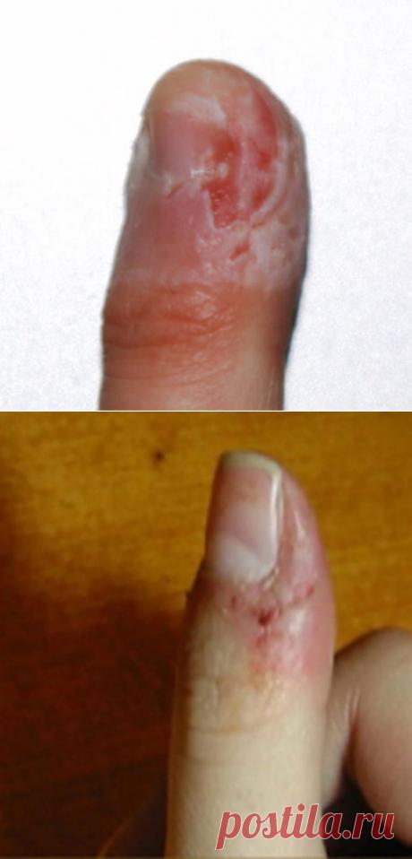 Если вы откусываете кожу вокруг ногтей, то вы должны немедленно перестать. Вот почему. - Счастливые заметки