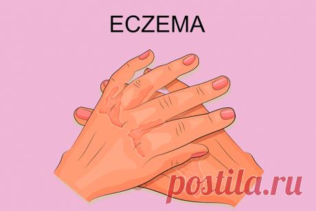 Экзема: симптомы, причины и лечение ...