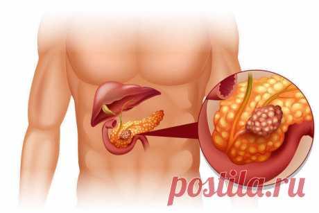 Ранние признаки рака поджелудочной железы...