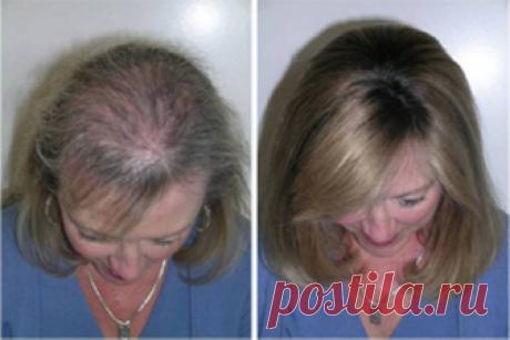 Быстрый рост волос благодаря этому трюку! Через месяц вы не поверите своим глазам  Попадая на волосы, касторка благотворно воздействует на волосяные луковицы. Она бережно окутывает каждый волосок, придавая ему гладкость и ухоженность. Это масло эффективно влияет и на спящие луковиц…