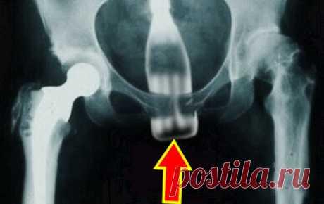 7 странных предметов, извлечённых хирургами из людей | Безумный Доктор | Яндекс Дзен