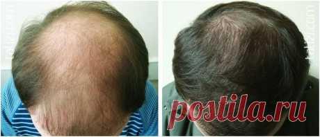 Супер-рецепт для волос, начинают расти даже на лысинах! Прочитала этот рецепт в газете «ЗОЖ». Рецепт потрясающий! Волосы становятся пышными, легко расчесываются, очень быстро растут, перестают выпадать. Многие его проверили и это действительно работает, да…