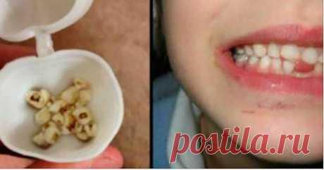 Узнайте, вот почему вы должны сохранить детские молочные зубы!