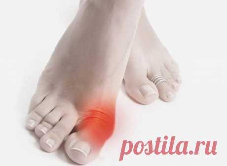 Профилактическое лечение подагры (косточек на ногах) с помощью обычных продуктов