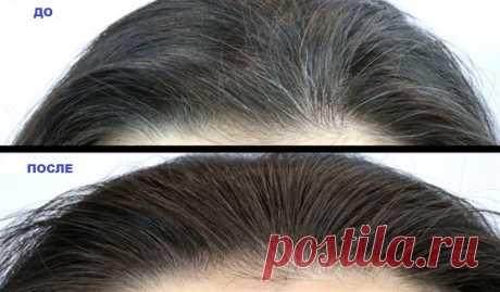 Невероятно: Это волшебное средство избавит вас от седых волос! Попробуйте это средство и вы избавитесь от преждевременных седых волос!