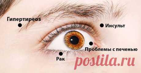 8 сигналов, при помощи которых глаза предупреждают о проблемах со здоровьем! Обрати внимание!   По глазам человека можно многое рассказать. Они отражают не только наш внутренний мир, но и наши болезни. Заболевания глаз могут служить сигналом о более серьезных...