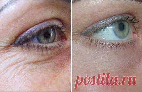 самый эффективный крем против морщин для глаз