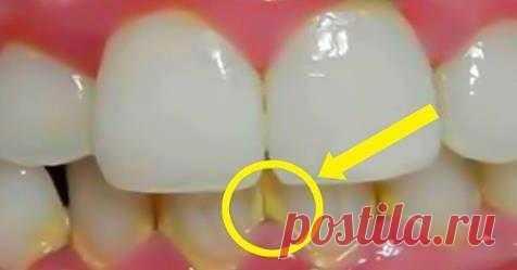 Зубной налет исчезнет спустя 5 минут. Отменила поход к стоматологу  Удаление зубного налета Эти народные рецепты не вредят зубной эмали, они всего лишь размягчают налет и даже зубной камень, способствуя легкому очищению зубов. Благодаря природным антисептикам отвары …