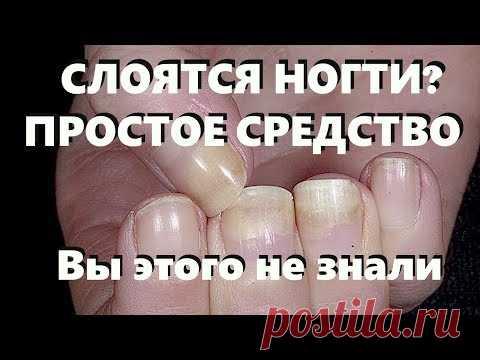 Если ногти слоятся, примените это средство. Вы этого не знали