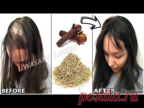 Для ускорения роста волос и лечения облысения с первой недели. Чтобы понять, нуждаются ли пряди в восстановлении, нужно ознакомиться с главными «симптомами» поврежденных волос.  Расслаивающиеся кончики; Хрупкость и ломкость; Тусклый цвет; Потеря объема; Усиленное выпадение; Медленный или остановившийся рост.