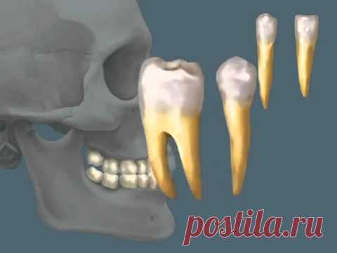 Human anatomy - Teeth.