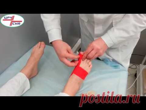 Кинезиотейпирование первого пальца стопы при Hallux-valgus
