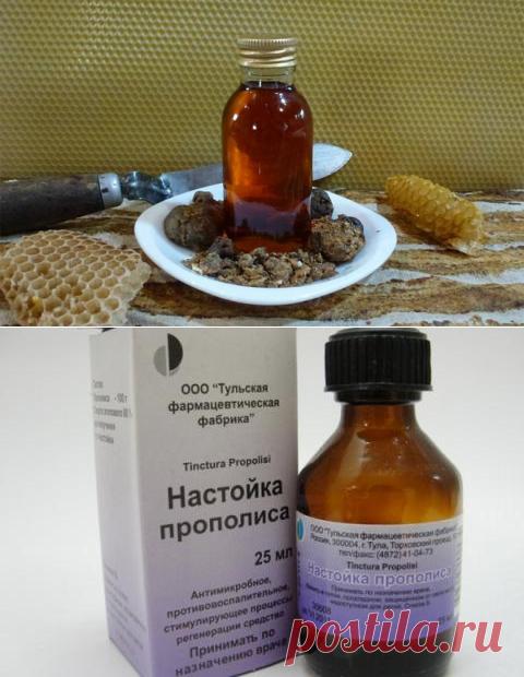 El tratamiento de la gastritis por el propóleos