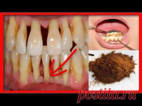 СТОМАТОЛОГИ СКРЫВАЮТ , что вылечить пародонтоз и убрать зубной камень можно простым порошком