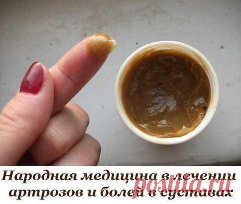 Как вылечить колени  Предлагаю свой рецепт:как я вылечила колени. Они у меня опухали,не гнулись,особенно под гору было ходить трудно,при ходьбе резкая боль. А лечила я их так. Рецепт на сайте: http://moy-znahar.ru/2644/Bespokoit_bolq_v_sustavah_kolenyah_kostyah_Samoe_yeffektivnoe_sredstvo_najdeno/