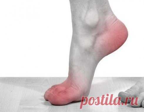 Это средство безотказно помогает, когда поднимается артериальное давление ВОПРОСЫ-ОТВЕТЫ
