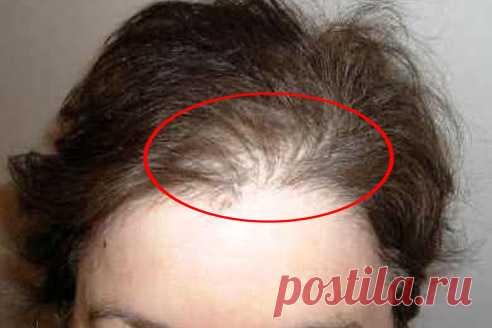 Нет щитовидки волосы выпадают