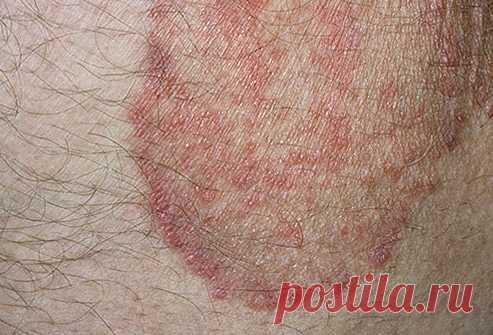 пятна в паху у мужчин при микозе кожи