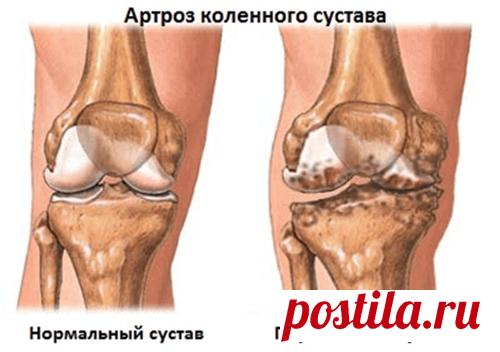 Болят суставы? Этот метод полностью восстанавливает больные суставы.