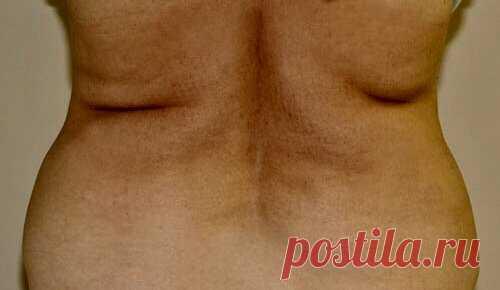 Простое упражнение от жирных складок на спине. И быстро похудеть за неделю | Все для стройной фигуры | Яндекс Дзен