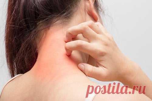 Как одуванчик помогает бороться с дерматитом и экземой Одуванчик с давних времен известен как натуральное средство, помогающее при многих проблемах со здоровьем.Это болезни печени, проблемы с пищеварением и...