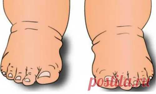 ❗️Если отекают ноги, вам нужно срочно чистить сосуды! Вот 100% рецепт...❗️ᅠᅠᅠᅠᅠᅠᅠᅠᅠᅠᅠᅠᅠᅠᅠᅠᅠᅠᅠᅠᅠᅠᅠᅠᅠᅠᅠᅠᅠᅠᅠᅠᅠᅠᅠᅠᅠᅠᅠᅠᅠᅠᅠᅠᅠᅠᅠ ᅠᅠᅠᅠᅠᅠᅠᅠᅠᅠᅠᅠᅠᅠᅠᅠᅠᅠᅠᅠᅠᅠᅠᅠᅠᅠᅠᅠᅠᅠᅠᅠᅠᅠᅠᅠᅠᅠᅠᅠᅠᅠᅠ  ᅠᅠᅠᅠᅠᅠᅠᅠᅠᅠᅠᅠᅠᅠᅠᅠᅠᅠᅠᅠᅠᅠᅠᅠᅠᅠᅠᅠᅠᅠᅠᅠᅠᅠᅠᅠᅠᅠᅠᅠᅠᅠᅠᅠᅠᅠᅠ ᅠᅠᅠᅠᅠᅠᅠᅠᅠᅠᅠᅠᅠᅠᅠᅠᅠᅠᅠᅠᅠᅠᅠᅠᅠᅠᅠᅠᅠᅠᅠᅠᅠᅠᅠᅠᅠᅠᅠᅠᅠᅠᅠ     реглан спицами  