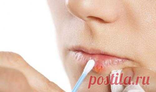 «Скорая помощь» при простуде на губах!
