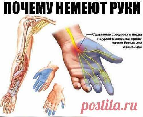 Почему немеют руки: 7 причин, заставляющих задуматься о здоровье.  Каждому человеку не раз приходилось сталкиваться с ощущением потери чувствительности ноги или руки, сопровождающимся легким покалыванием или жжением. Зачастую это происходит из-за временного нарушения кровообращения в конечности вследствие сдавливания сосудов и нервных окончаний. Стоит начать двигаться или сменить положение, и чувствительность восстанавливается.  И всё-таки неудобное положение во время сна, к сожалению, не единс