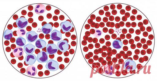 Почему понижены лимфоциты и что с этим делать