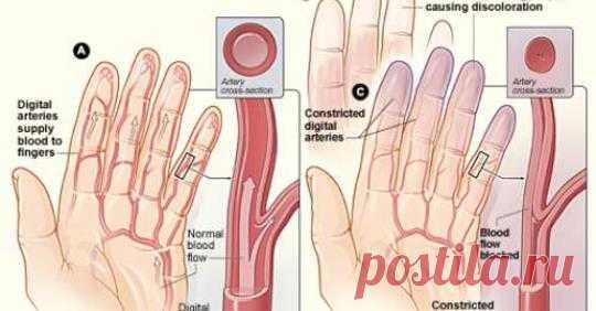 Почему мои ногти синеют? - Упражнения и похудение Есть ли у вас такая проблема? Люди, у которых есть моменты, когда ногти становятся синими, испытывают симптом, называемый цианозом. Из-за снижения уровня кислорода в тканях цианоз может указывать на слабую функцию легких, затрудненную циркуляцию или нарушение сердечного выброса. Синие ногти также могут происходить безвредно, когда человеку холодно, а сердце направляет поток крови больше к центру …