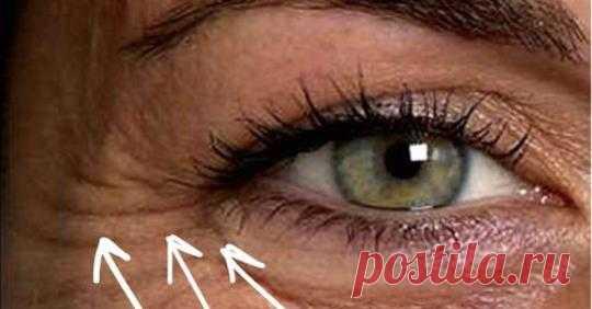 Как быстро избавиться от морщин под глазами - Упражнения и похудение Легко и просто! Ваши глаза показывают ваш возраст больше, чем вы хотели бы? Это естественно и нормально, когда мы стареем, особенно если мы не заботимся о чувствительной коже глаз. Морщины, которые образуются вокруг глаз, когда кожа становится тоньше, называются «гусиными лапками». Курение и время, когда вы щуритесь, являются основными причинами, помимо старения. Вот некоторые идеи …